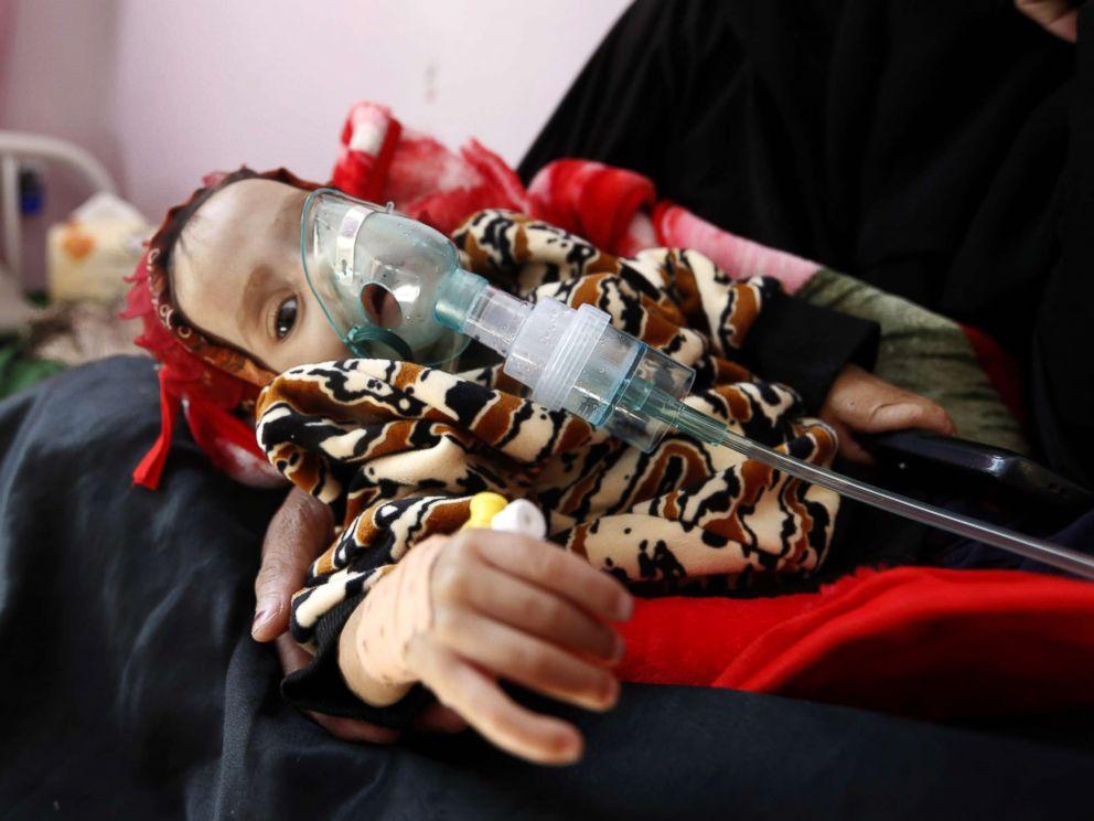 yemen-gty-1-er-171130_4x3_992