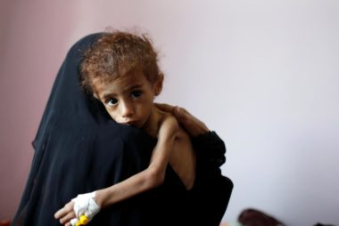 A woman holds a malnourished boy in a malnutrition treatment centre at the al-Sabeen hospital in Sanaa