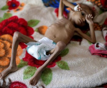 FILE PHOTO: A malnourished boy lies on a bed in a malnutrition treatment centre at the al-Sabeen hospital in Sanaa, Yemen October 6, 2018. REUTERS/Khaled Abdullah/File Photo