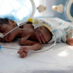yemen-baby-malnourished